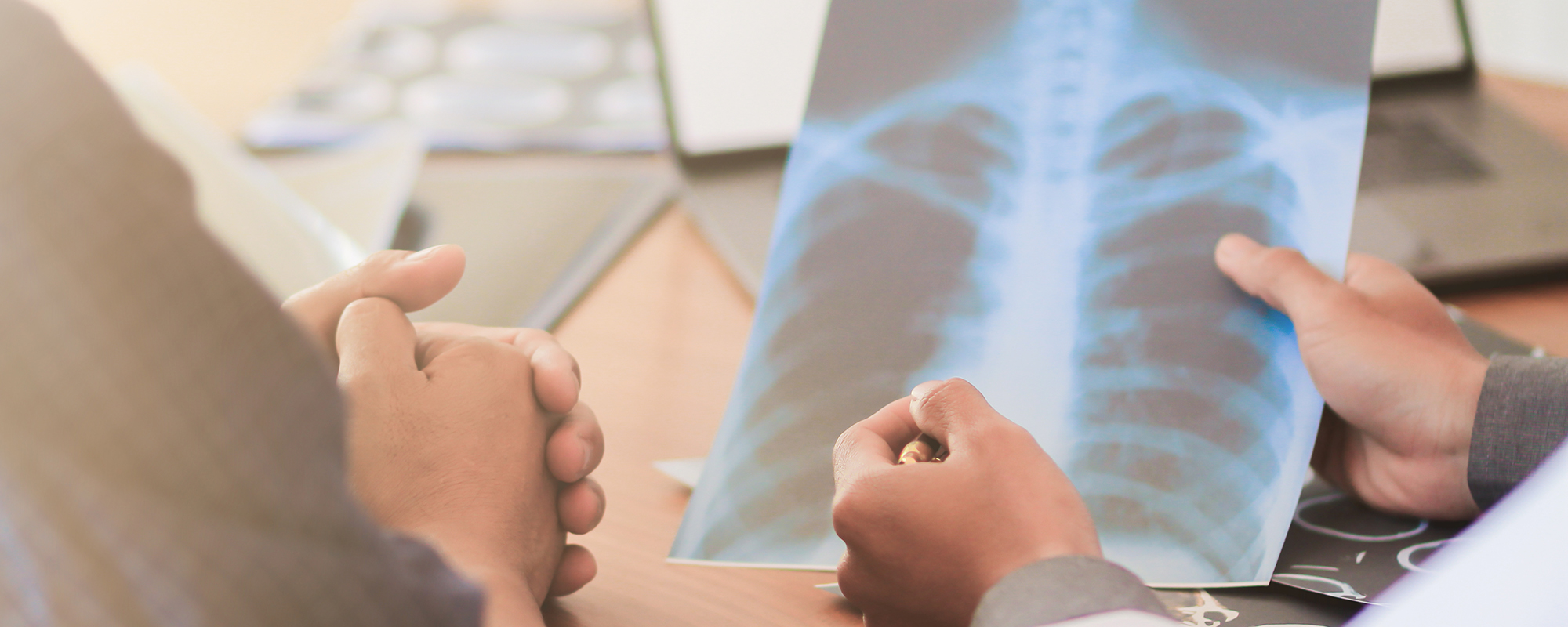 This is an image of a chest x-ray, symbolizing other asbestos related cancers.